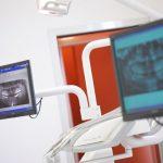 sedazione e controllo dell'ansia, odontoiatria su disabili in sedazione, odontoiatria in sedazione